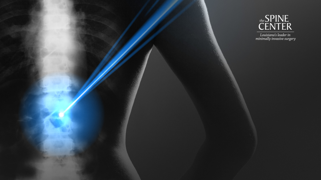 Zoom xray background image for the Spine Center..